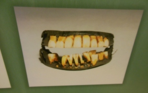 George Washington's dentures, as pictured in very Necessary Care and Attention: George Washington and Medicine